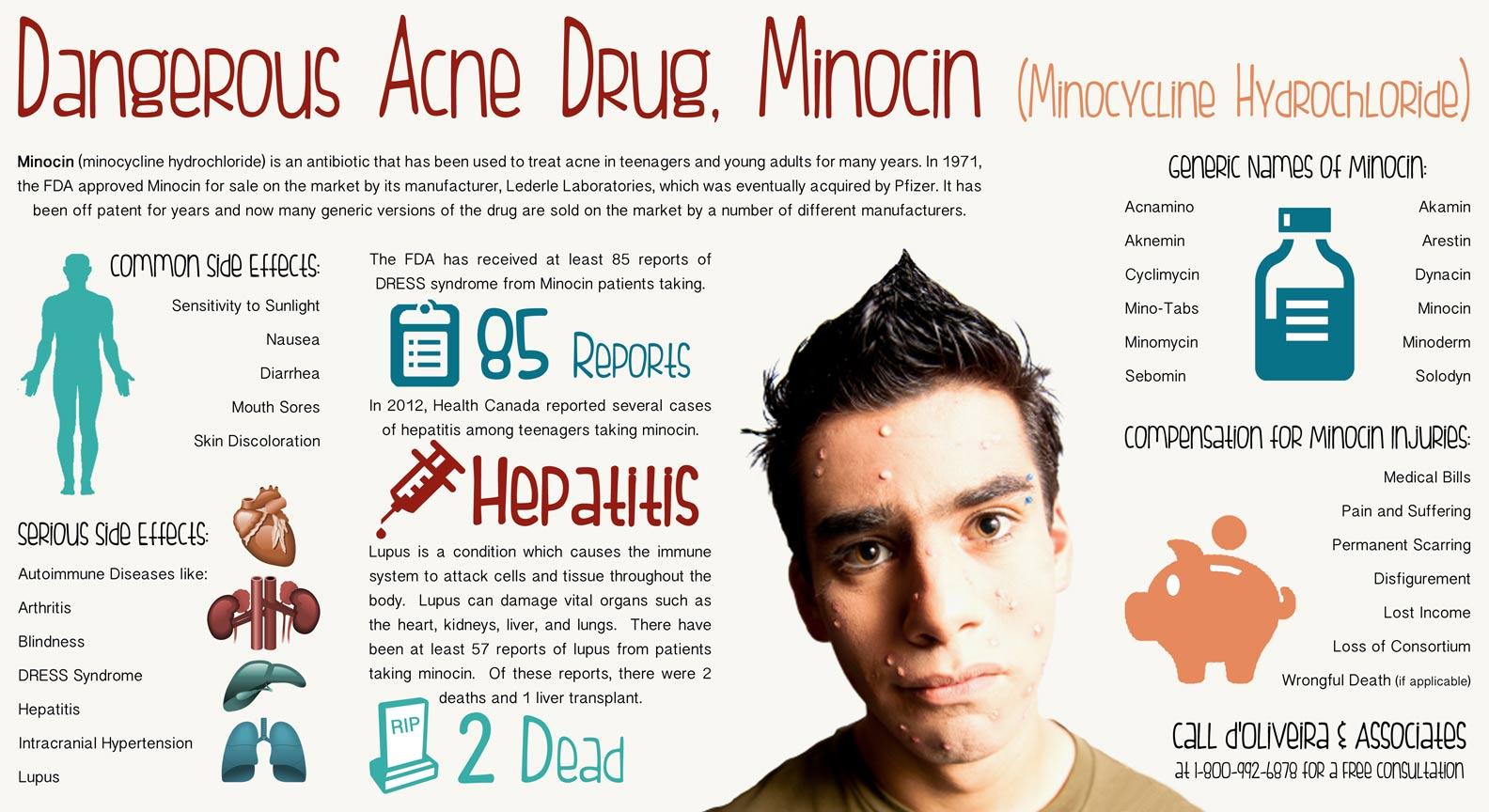 Minocycline لعلاج حب الشباب