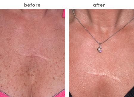 eat your way to lighter skin pdf