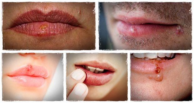 Get To Know 13 Tips On How To Get Rid Of Cold Sores Naturally
