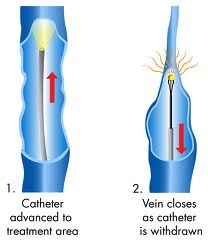 Advanced Vein Care Solutions Publishes New Article on Little Known Varicose Vein Treatment Facts