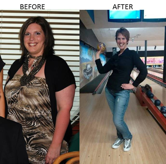 American Patient Praises Gastric Sleeve Surgery In Mexico After