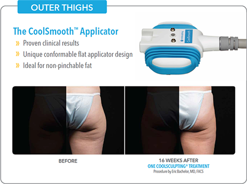 outer-thighs_497x370 New CoolSmooth Applicator for CoolSculpting | Northern Virginia