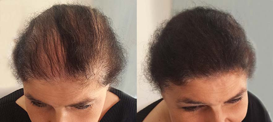 Menopause Related Hair Loss In Women Gets A Shake Up With