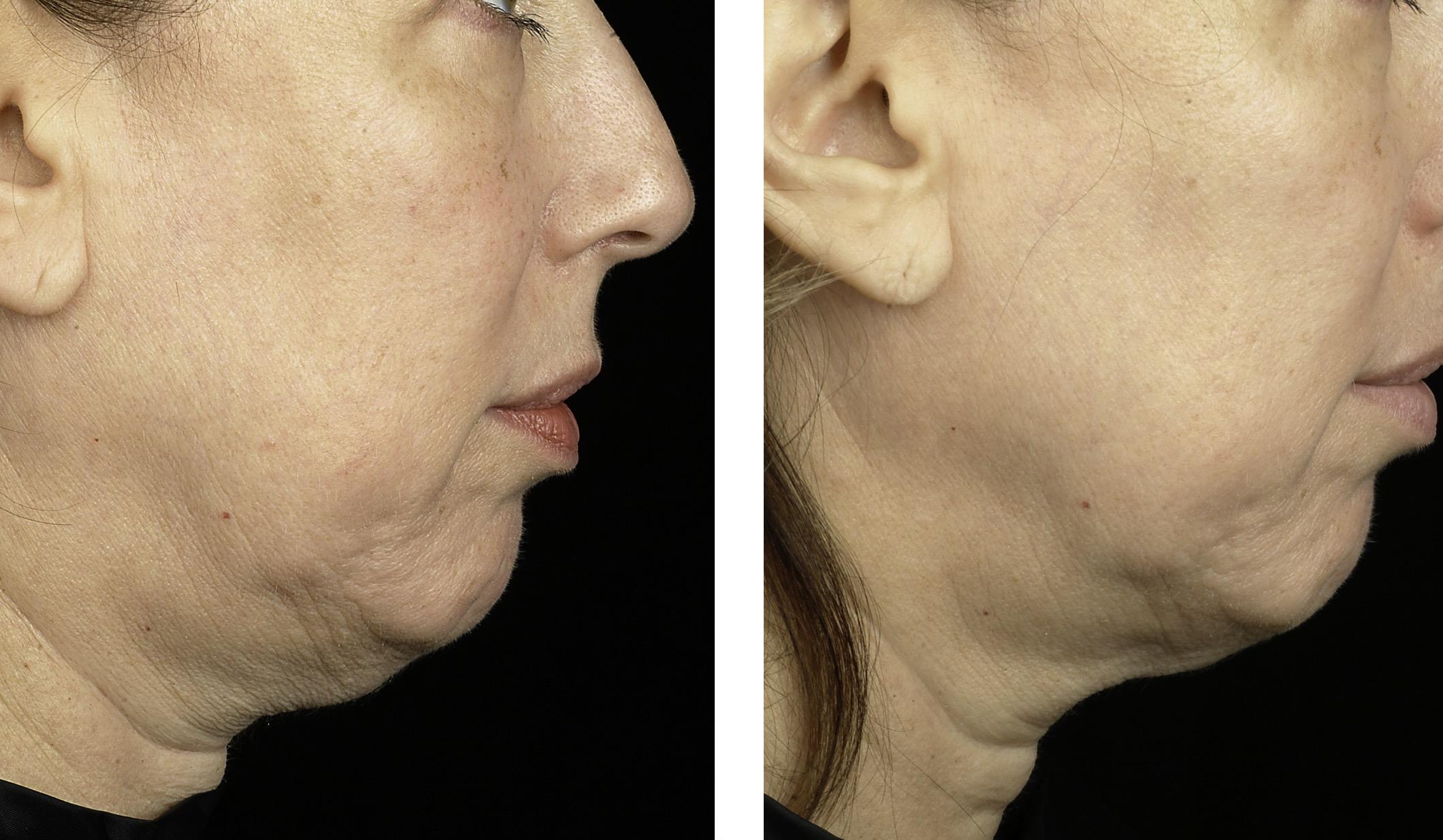 weight loss surgery autoimmune disease