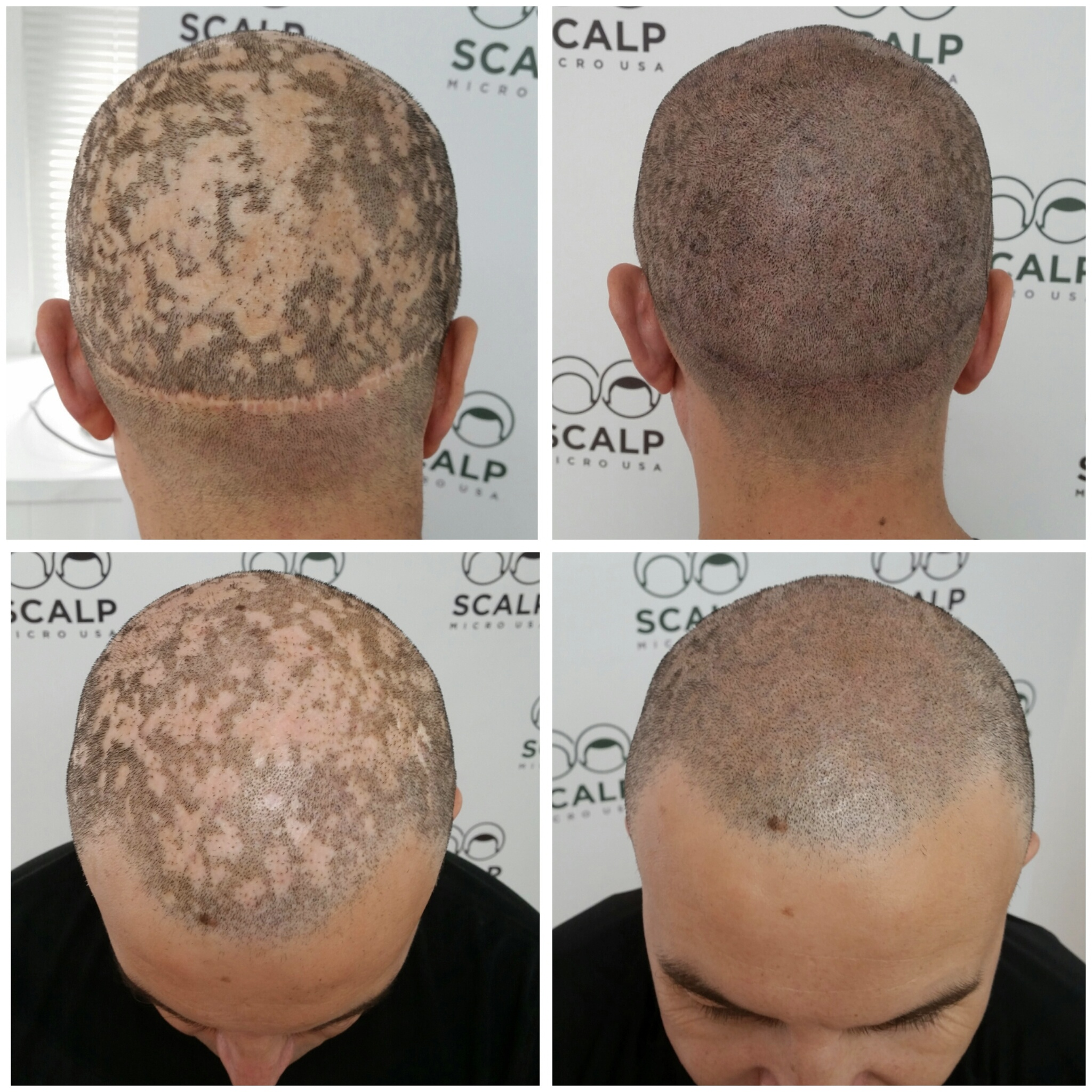 Cosmetic treatments to get hair on scalp photo