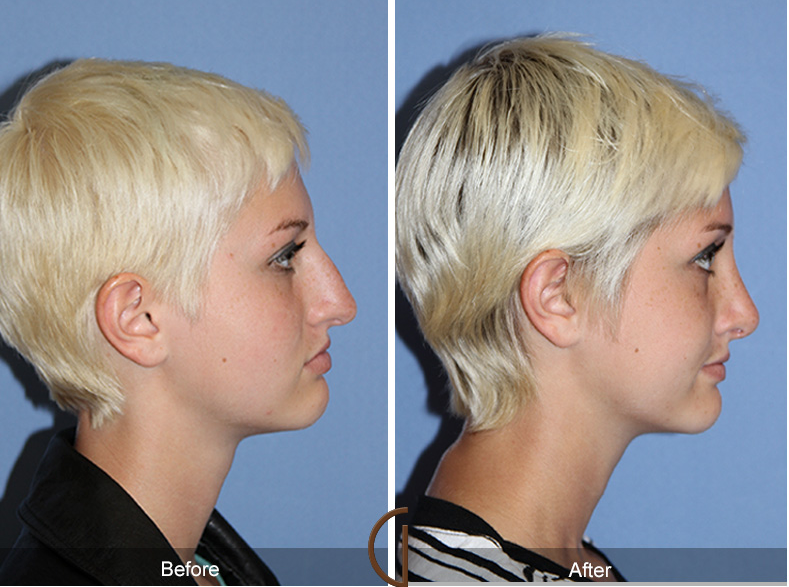 Teenage Rhinoplasty - Needed after a broken nose.
