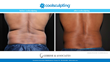 Actual Patient of Dr. Gerrish CoolSculpting Results