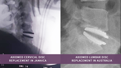 AxioMed Freedom disc deemed revolutionary by surgeons around the world