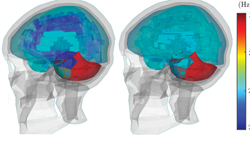 Differences in brain dynamics in injured vs. non-injured athletes. The left side shows the dynamics of an injury; the right side shows the dynamics of a non-injury. CREDIT: KurtLab