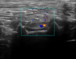 Example in vivo ultrasound image of EchoMark marking vessels in soft tissue.
