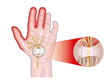 carpal tunnel syndrome, wrist pain, median nerve, Campbell, Smith Family Chiropractic