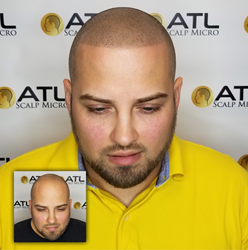 Best Scalp Micropigmentation Before and After on Latino Man in Atlanta GA