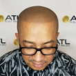 ATL Scalp Micro Best Scalp Micropigmentation Atlanta GA for Black Men White Men Hispanic Men Latino Asian Men All Skin Tones Male Female Blond Light Hair Dark Hair Tennessee Alabama North Carolina South Carolina