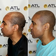 ATL Scalp Micro Best Scalp Micropigmentation Atlanta GA for Black Men White Hispanic Latino Asian All Skin Tones Male Female Blond Light Hair Dark Hair Tennessee Alabama North Carolina South Carolina