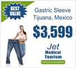 Jet Medical Tourism – Research Study on ScienceDirect Confirms Efficacy and Safety of Weight Loss Surgery in Mexico