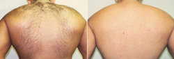 Successful Male Back Hair Laser Hair Removal in Herndon, VA and Chevy Chase, MD