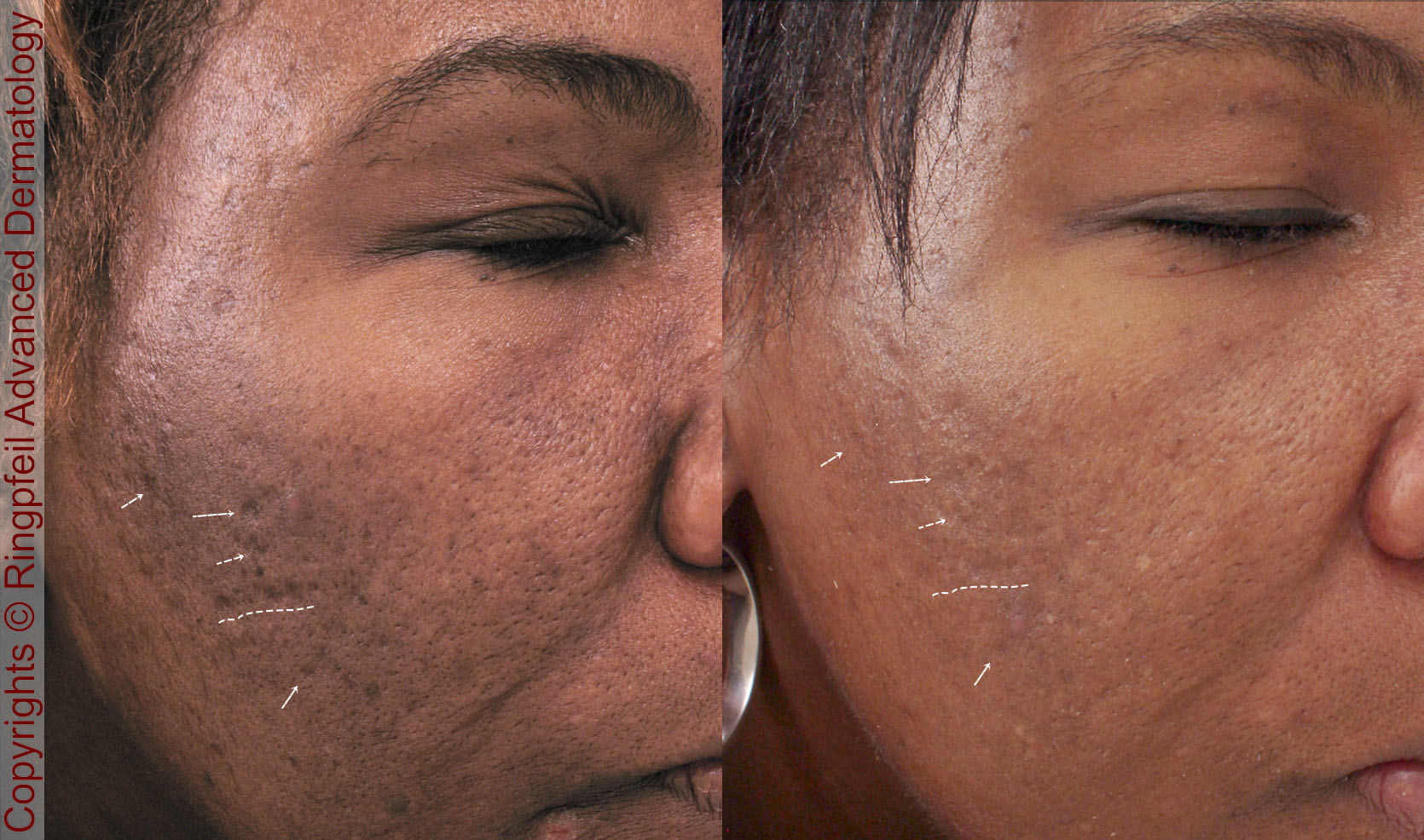 Fractionated RF Microneedling and PRP with Vivace is Now