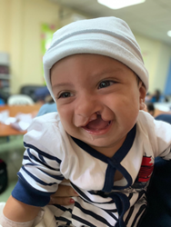 A smiling child with a cleft palate