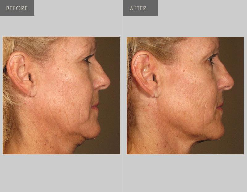 Vancouver Laser Skin Care Centre Earns Title Of North America S Go To Clinic For Revolutionary Non Invasive Skin Tightening Procedure Ultherapy