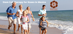 Stem Cell Therapy for Knees in Mexico