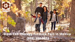 Stem Cell Therapy for Back Pain in Mexico