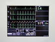 InfoBionic On the Front Lines of EHR Interoperability with Full Disclosure Cardiac RPM