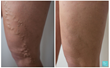 varicose vein removal surgery evla before after photos results