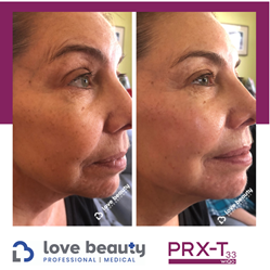 Love Beauty Pro & Medical Brings Cutting-Edge Skin Treatment PRX-T33® to U.S. Market in Partnership with WiQo®, the PRX-T33 Creator from Italy